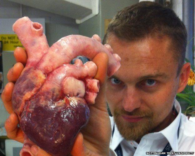 Photo Credit http://imgarcade.com/1/real-human-heart-surgery/