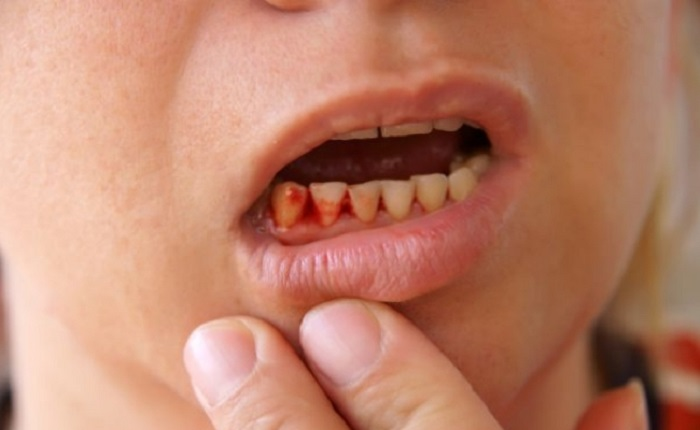 Photo Credit http://www.thedentalcheck.com/eating-disorders-and-your-teeth/